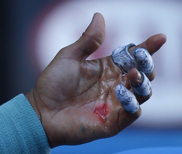 Nadal Hand Blisters Reuters
